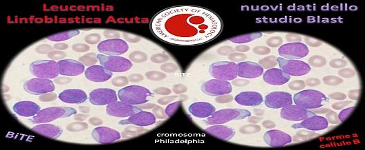 Leucemia Linfoblastica Acuta versus Blast