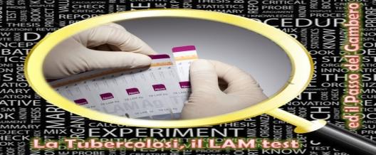 La Tubercolosi, il LAM test ed il Passo del Gambero