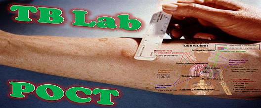 TB Lab: POCT?