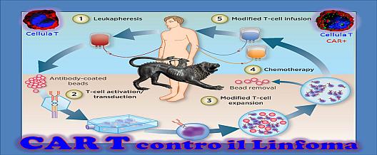 CAR T contro il linfoma