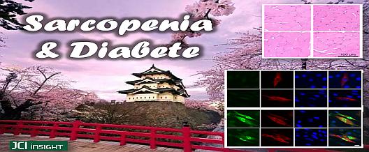 Sarcopenia e Diabete