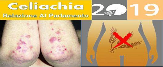 Celiachia 2019