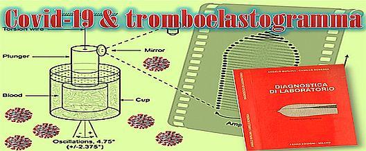 Covid-19 & tromboelastogramma